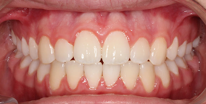After treatment where braces were used to correct the dental alignment and occlusion (bite) between the teeth